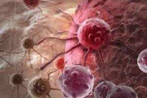 Пораженная раком клетка